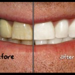 Whiten Teeth in Photoshop