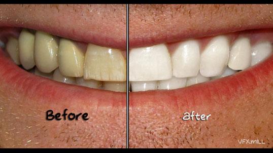 Whiten Teeth In Photoshop Vfxmill